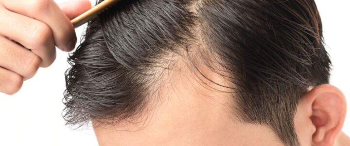 Profolan – tabletki na łysienie u mężczyzn: działanie, skład, cena, opinie